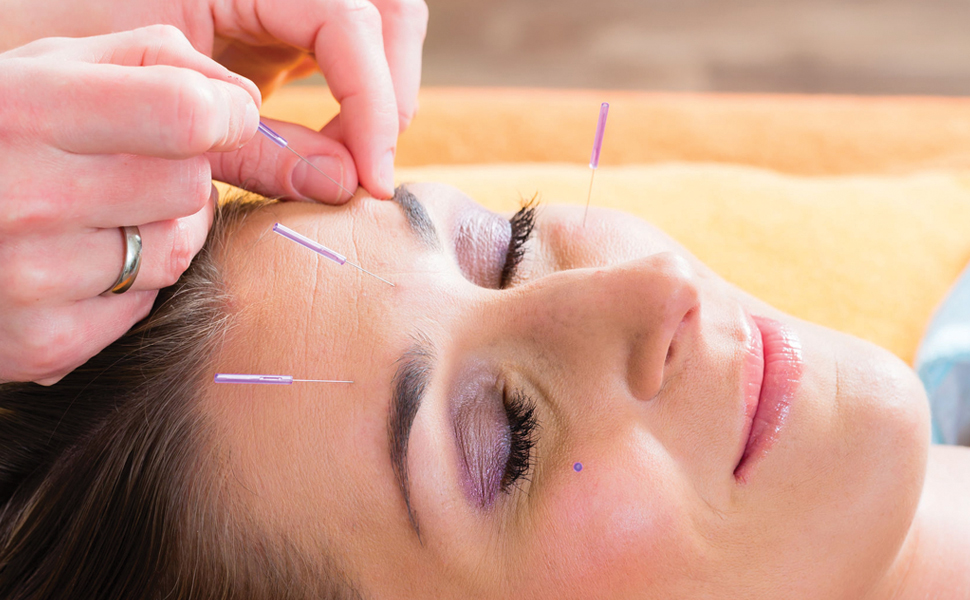Woman getting acupunture on her face