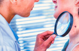 Doctor examines mole on neck of senior woman with magnifying glass.